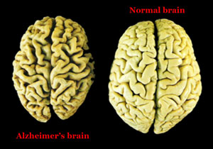 Alzheimer's: Why is the Brain Deteriorating?